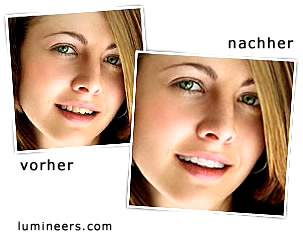 Lumineers Zahnbehandlung bleeching Mannheim